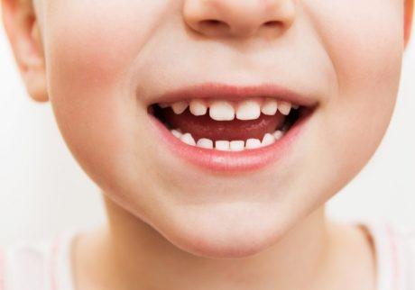 子どもの歯磨き習慣にプラスしたい、虫歯予防のアイテム