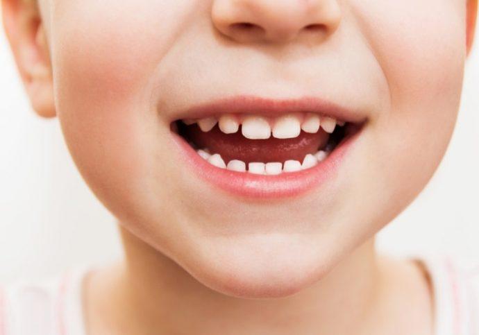 1108_teeth