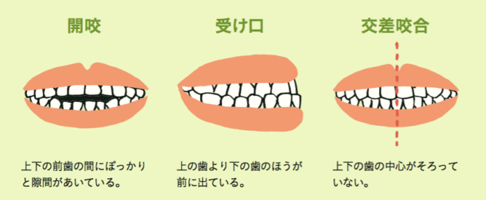 きれいな歯ならびのための習慣 歯科矯正 ハナコママ 育児