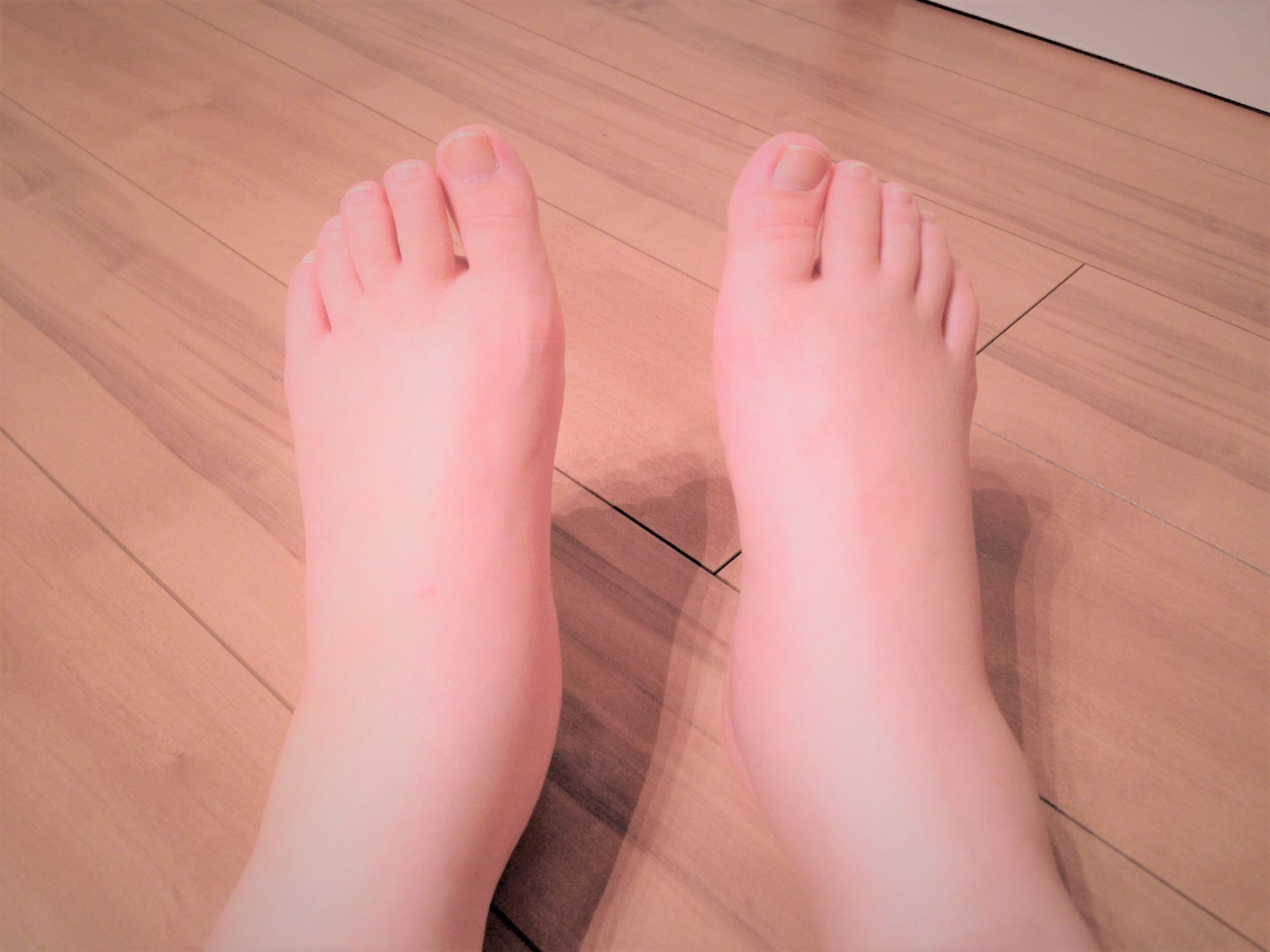 足 の むくみ 妊婦