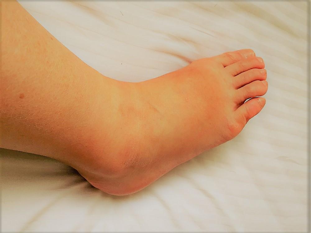 妊婦 足 の むくみ マッサージ 【足のむくみ解消】妊娠中のおすすめマッサージ方法☆