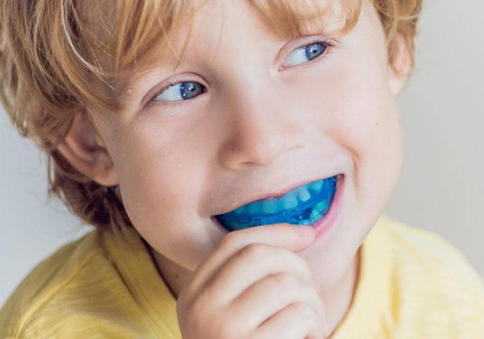 子供の歯並びは10万円以下で歯科矯正!安い/簡単/夜だけで歯並びをキレイにする方法
